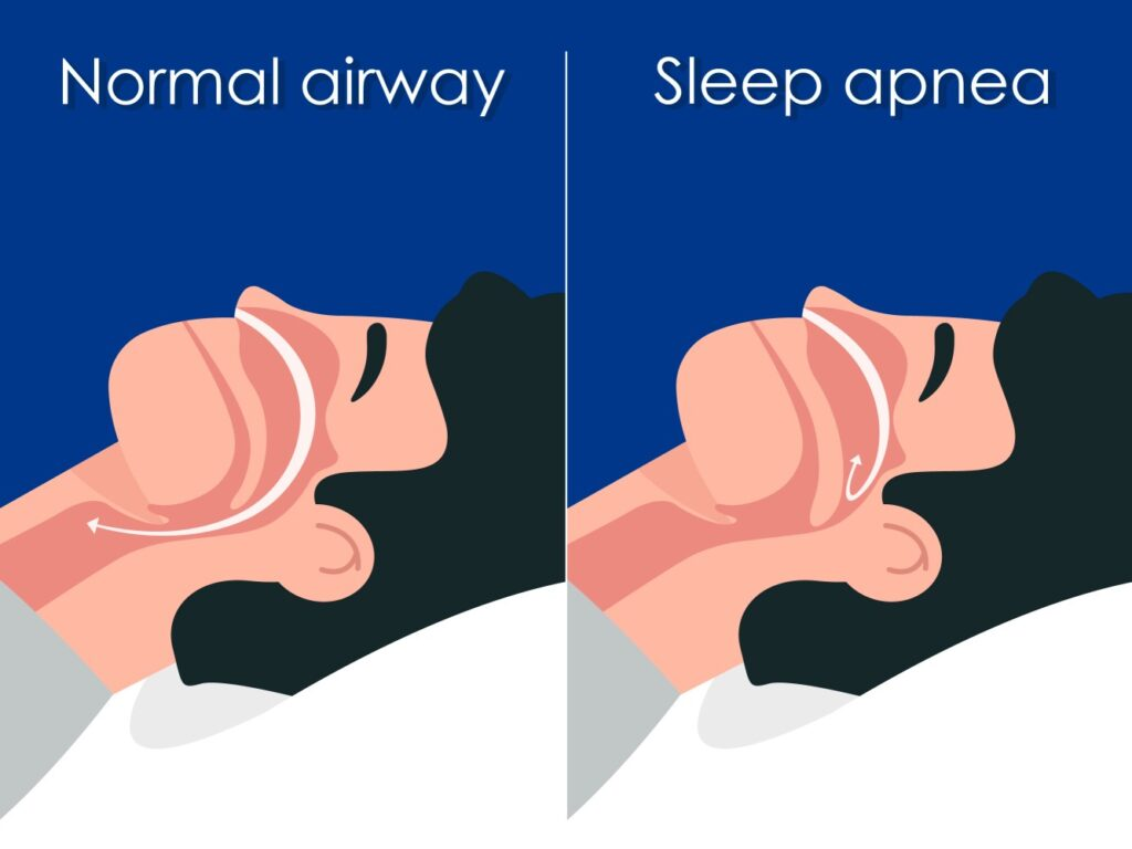2 men lying down on a bed. One has sleep apnea and the other doesn't have. Showing the difference in air flow between the two men.