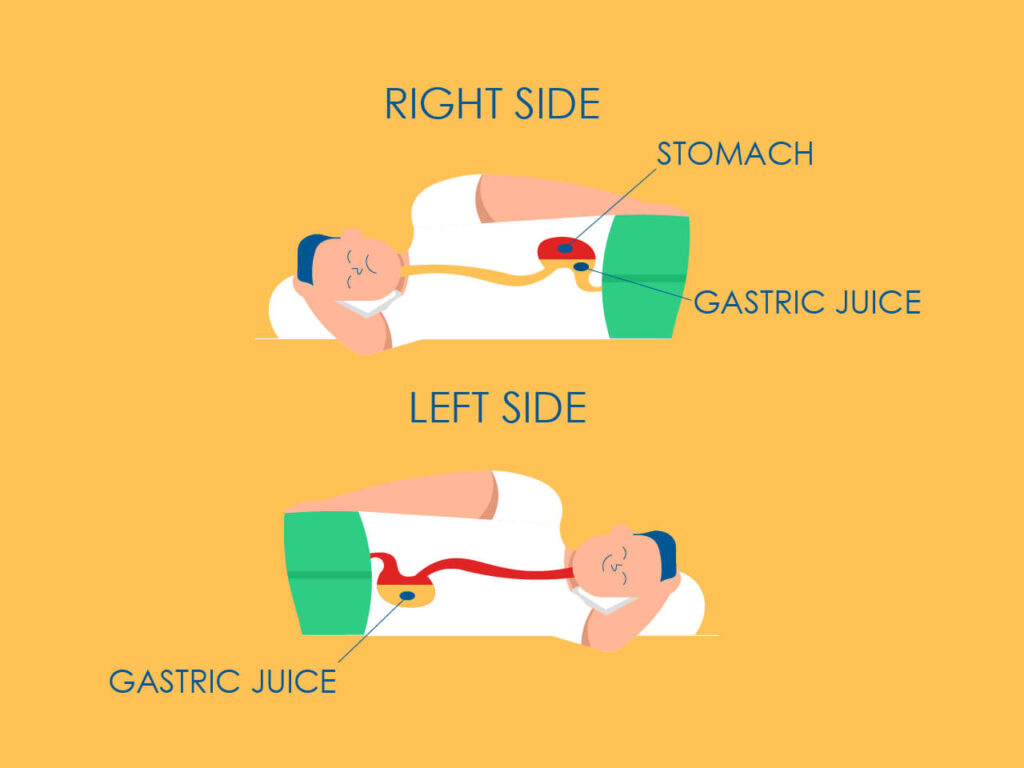An illustration of how gravity aids to reduce acid reflux severity in left side sleepers