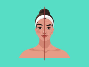 Read more about the article The 5 Best Ways to Prevent and Reduce Sleep Lines on Forehead